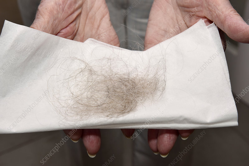 Hairloss in anticoagulant treatment