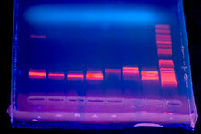 DNA electrophoresis under UV light