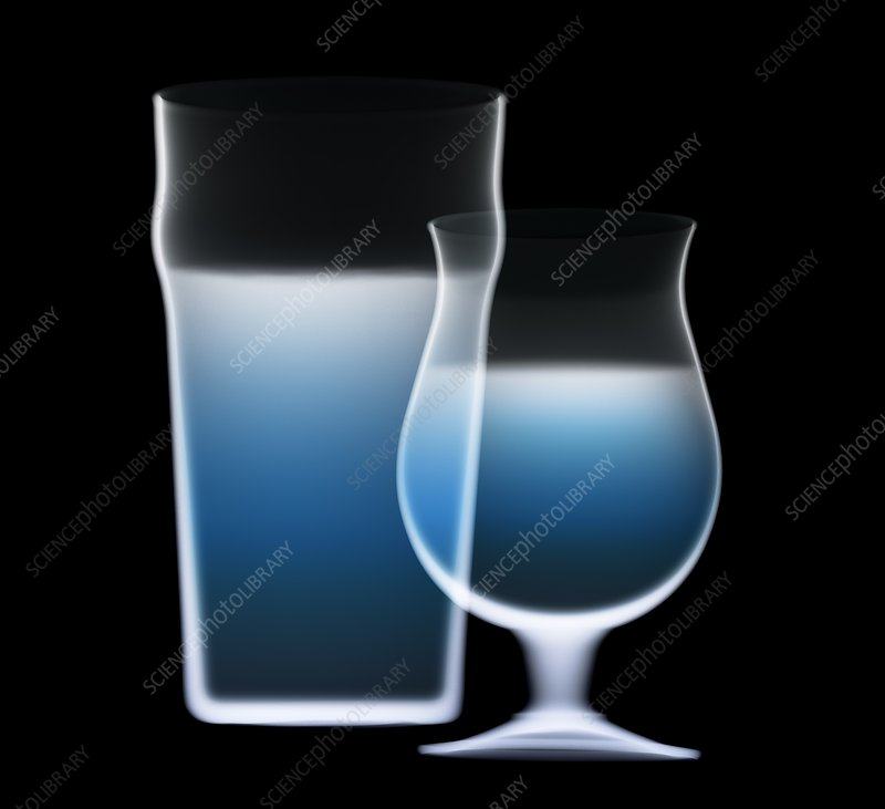 Drinks in glasses, X-ray