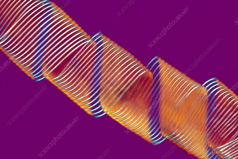 Spiral vessel, polarised light micrograph