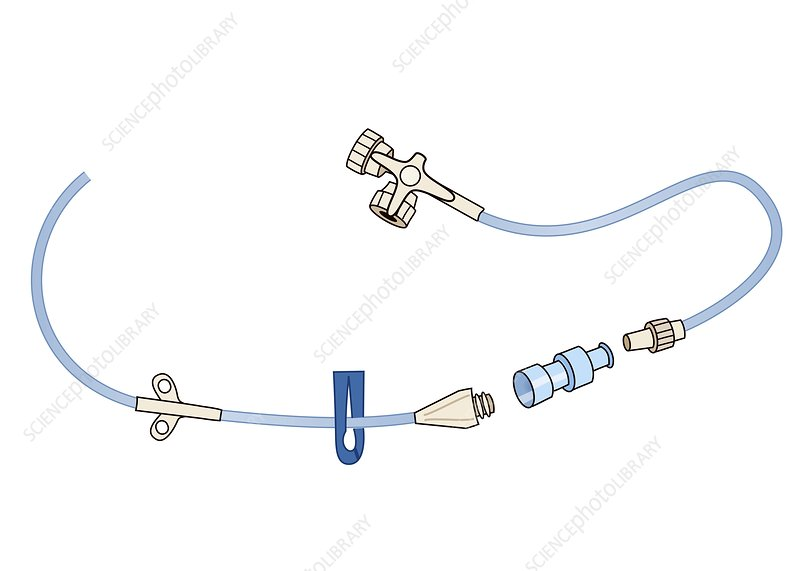 Central venous catheter, illustration