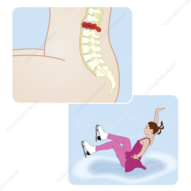 Spinal fracture in skater, illustration