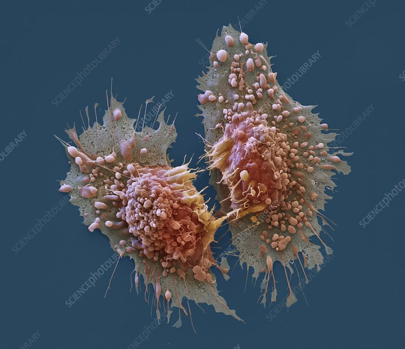 Cancer cells, SEM