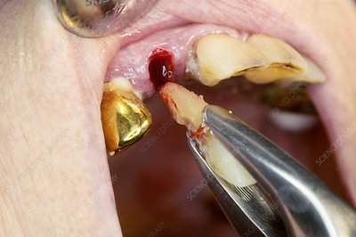 Incisor tooth extraction