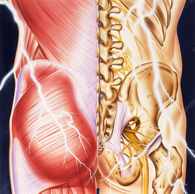 Causes of backache and pain, illustration