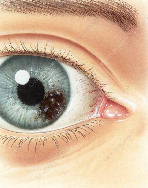 Melanoma of the iris, illustration