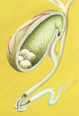 Gallstones in gallbladder, illustration