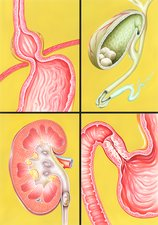 Digestive-excretory disorders, artwork