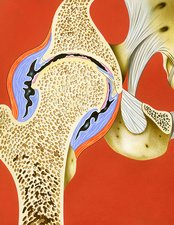 Hip joint inflammation, illustration