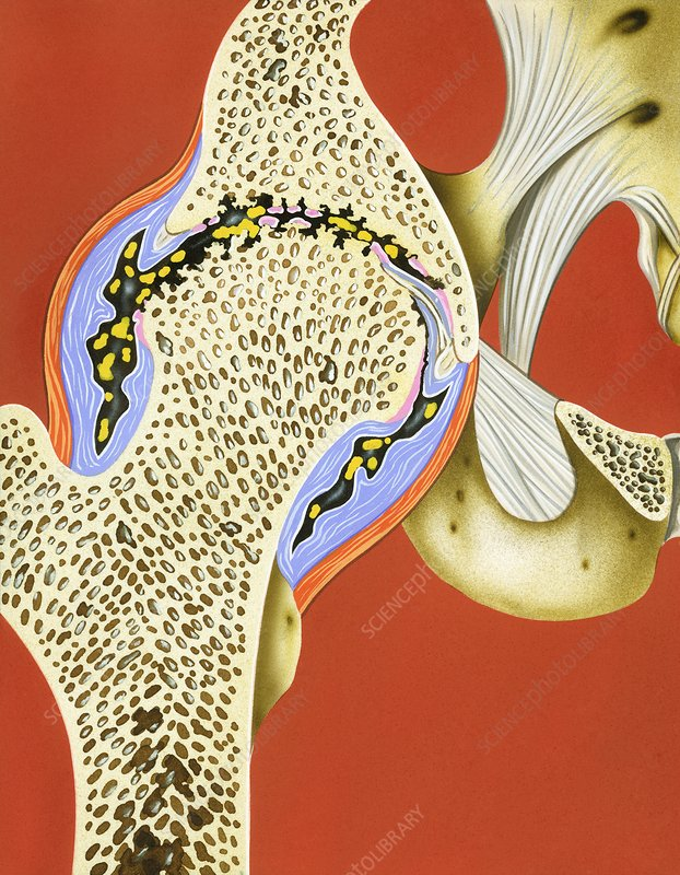 Hip joint cartilage loss, illustration
