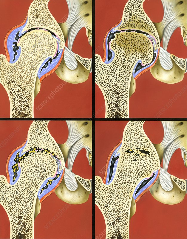 Hip joint degeneration, illustration