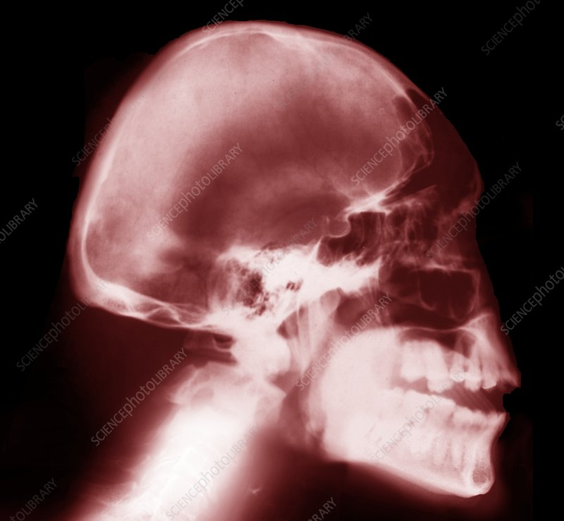 Microcephaly, X-ray