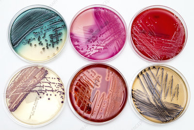 Bacterial growth on culture media