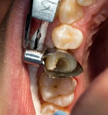 Dental filling cavity preparation