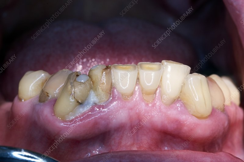 Dental caries and plaque