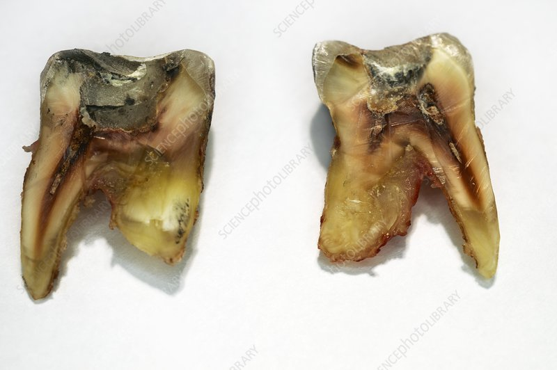 Extracted tooth structure