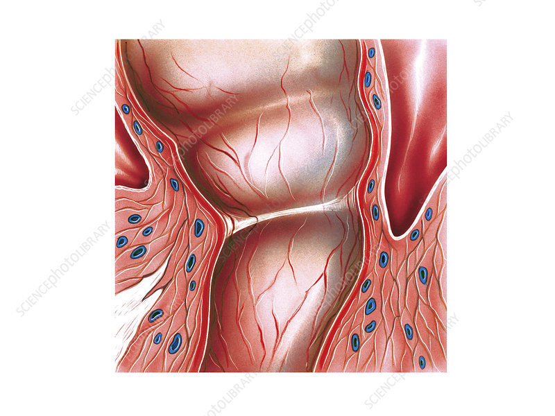 Postpartum cervix, illustration