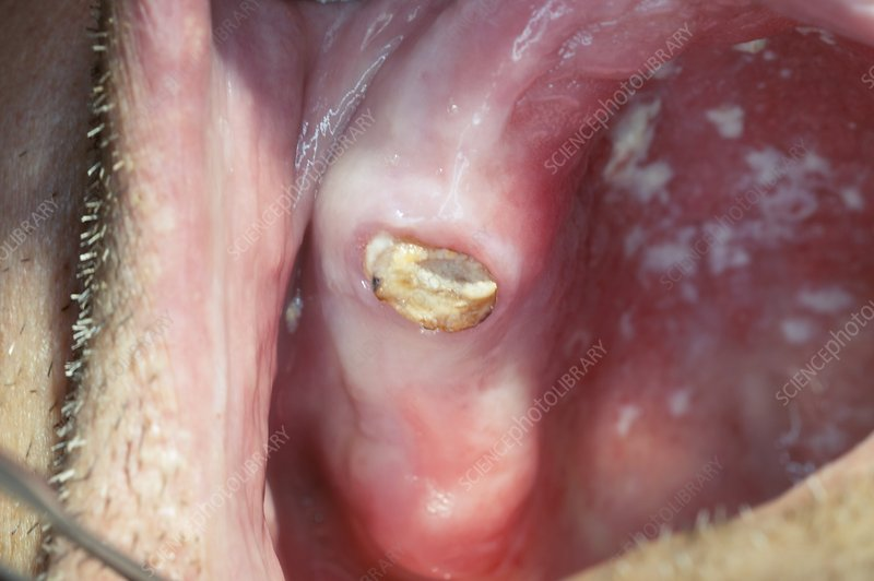Decayed premolar tooth