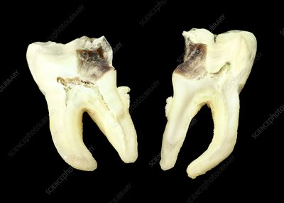 Decayed tooth structure