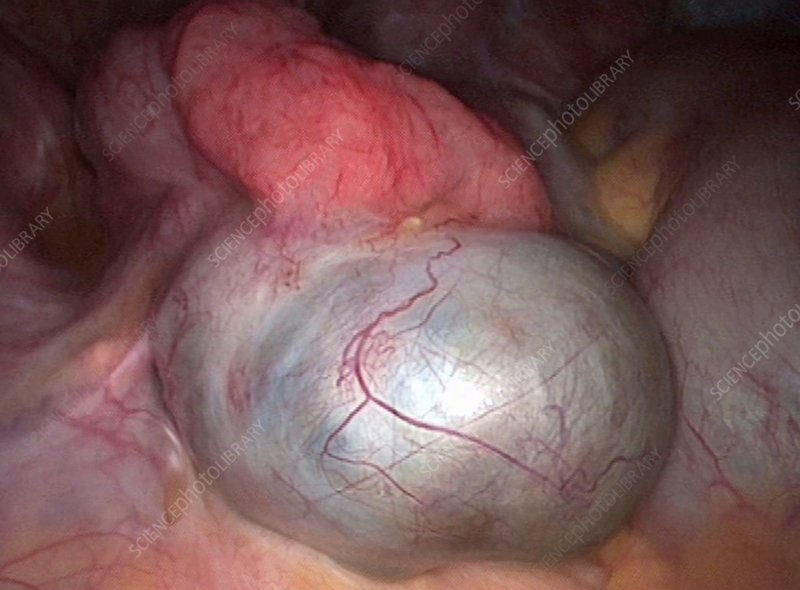 Endometriotic cyst, laparoscopy