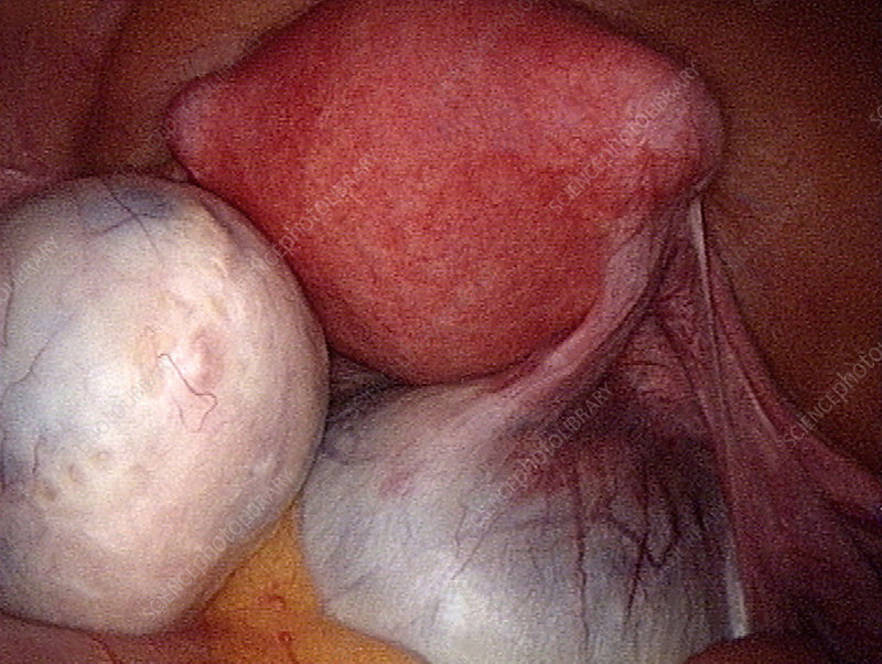 Ovarian cysts, laparoscopy