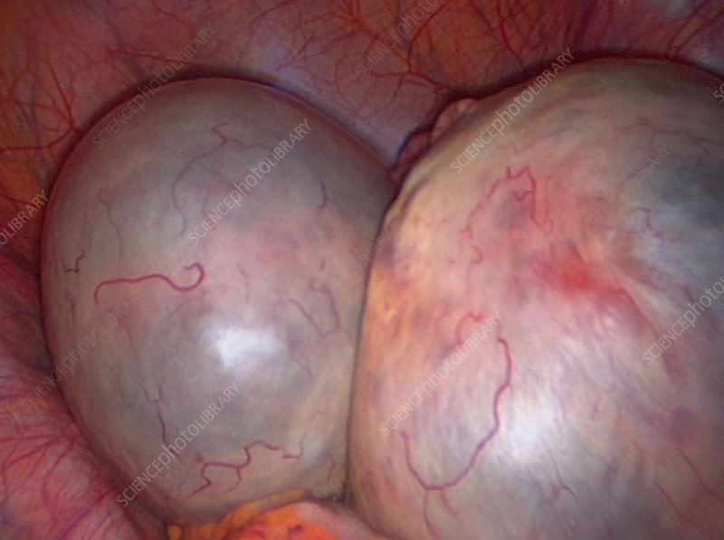 Spontaneous ovarian hyperstimulation