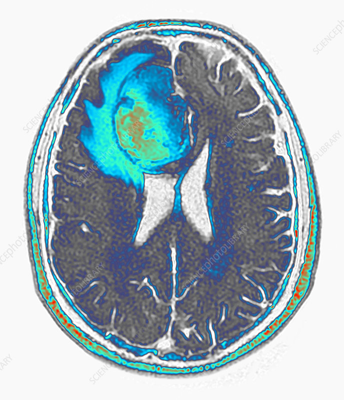 Brain cancer, FLAIR MRI
