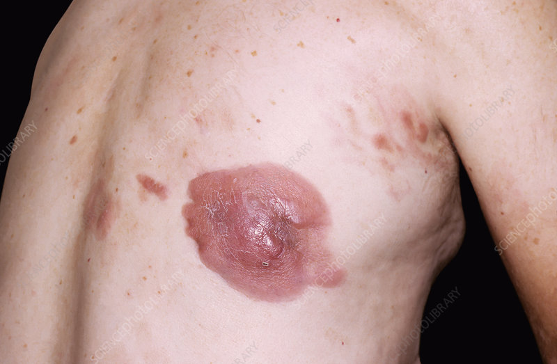 Mycosis fungoides skin cancer