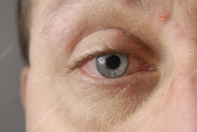 Bloodshot eye in shingles infection