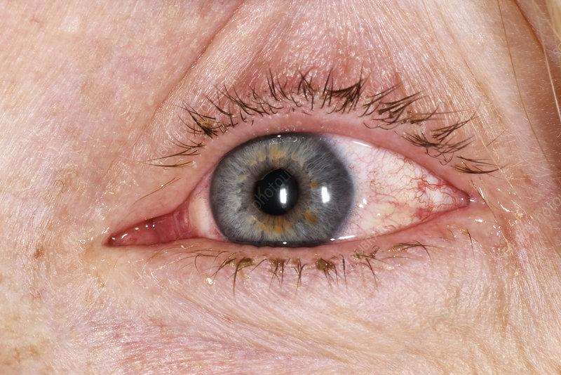 Allergic reaction to eyelash glue - Stock Image - C029 ...