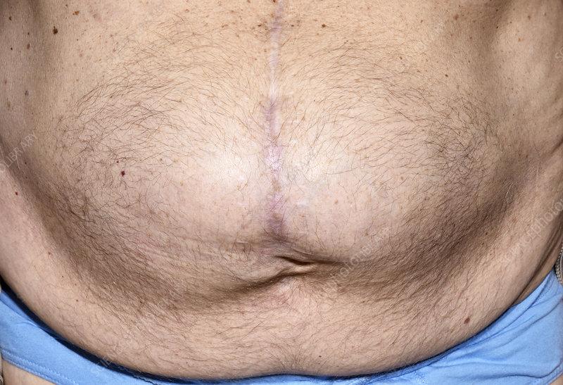 Hernia following abdominal surgery - Stock Image - C029/4909