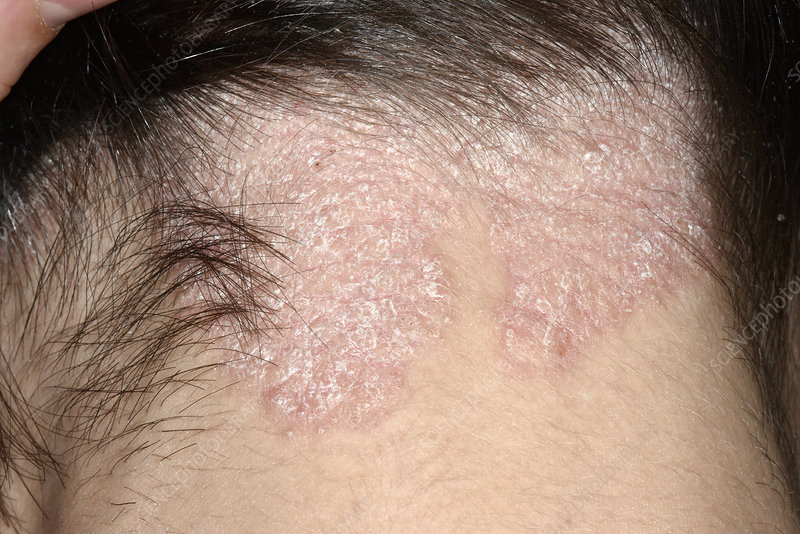 Psoriasis On The Scalp Stock Image C0295017 Science Photo Library
