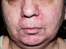 Acne rosacea during treatment