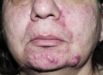 Acne rosacea before treatment