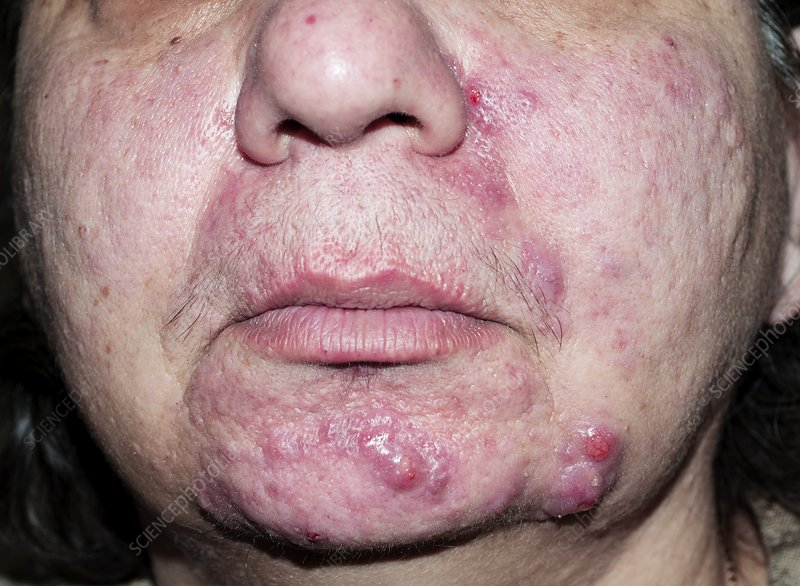 Acne Rosacea Before Treatment Stock Image C029 5245 Science