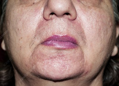 Acne rosacea after treatment