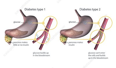 Type 1 and 2 diabetes, illustration