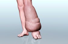 Elephantiasis, illustration