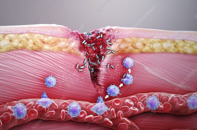 Skin damage immune response, illustration