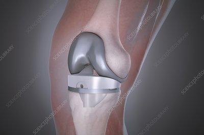 Knee after knee replacement, illustration