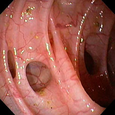 Diverticular disease in the colon