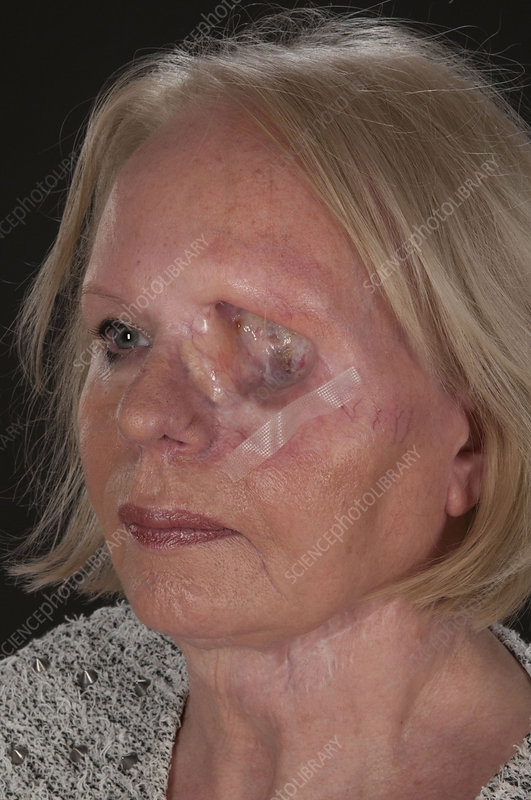 Eye Removed In Skin Cancer Stock Image C029 6407 Science Photo Library