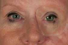 Eye removed in skin cancer