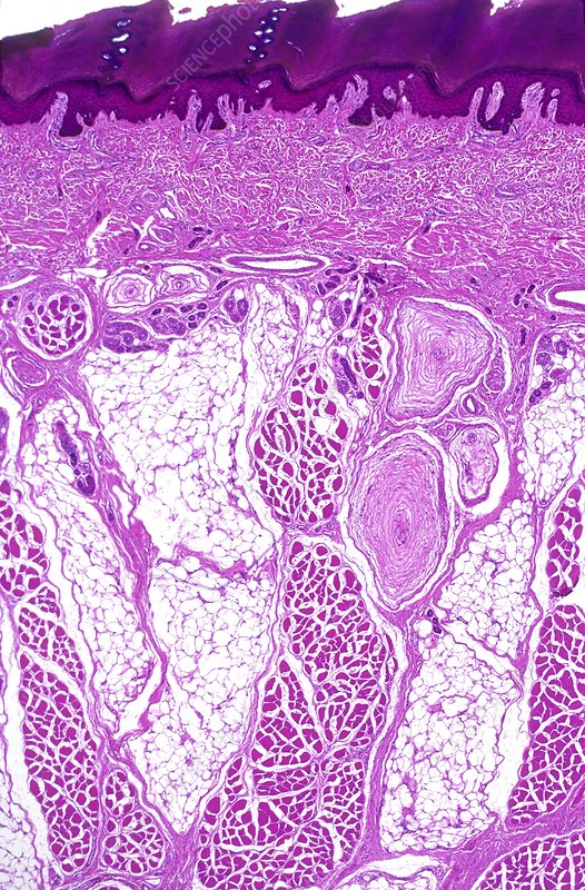 Pacinian receptors in skin, light microgr