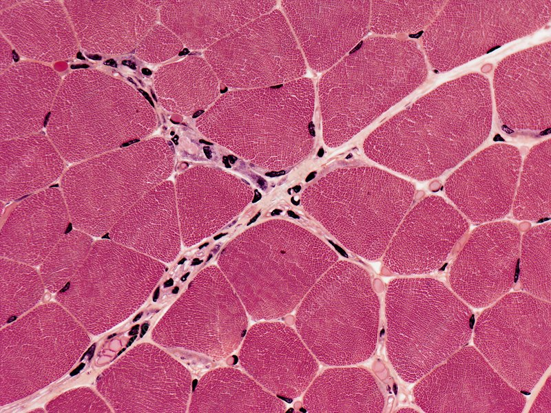 Skeletal muscle, light micrograph