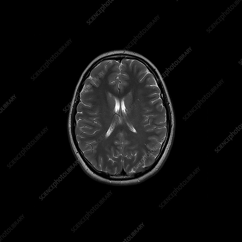 Teenage brain, MRI scan