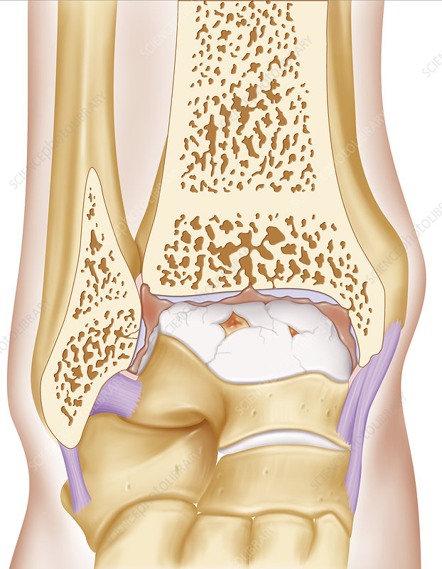 Osteoarthritis, illustration