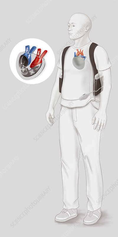 Artificial heart, drawing