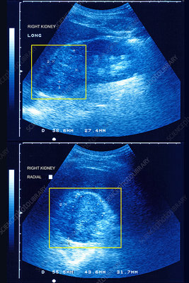 Kidney cancer, sonography