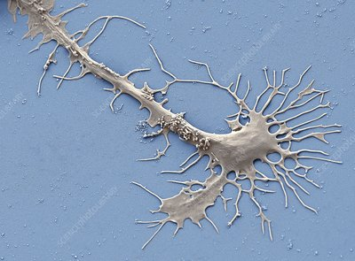 Stem cell-derived neuron growth cone, SEM